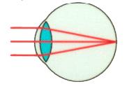 Как правильно подобрать линзы для коррекции зрения